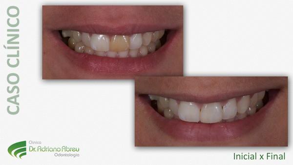 Clareamento Dental Em Fortaleza Clareamento A Laser E Clareamento