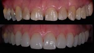 Dentes quebrados, amarelados ou com malformações são cobertos pela faceta de porcelana.