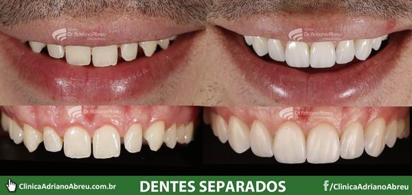 dentes-separados