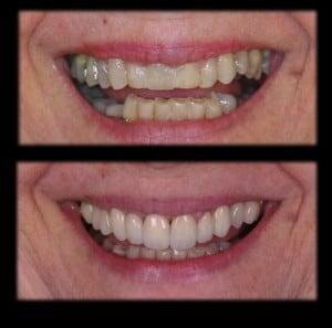 Se você não está satisfeito com a forma, a cor e os espaços entre seus dentes, o tratamento com as facetas em porcelana pode ser muito satisfatório.