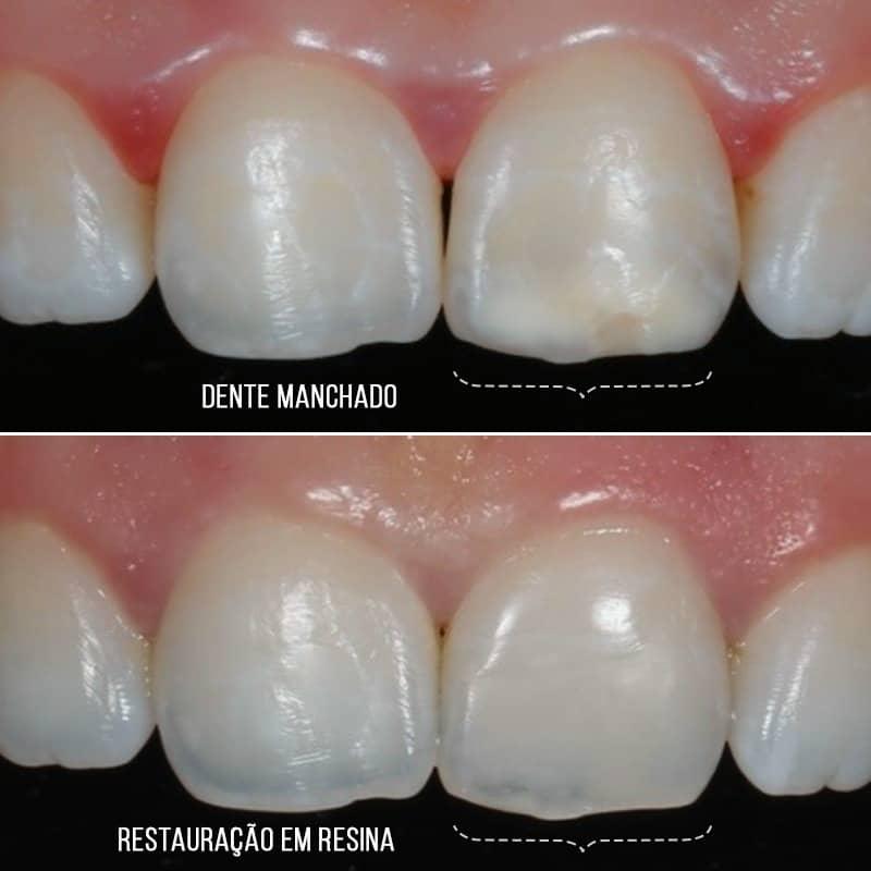Resina para dentes manchados