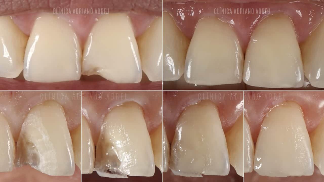 Como é o tratamento de dentes quebrados com resina? Veja algumas etapas.