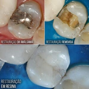 A anatomia é a forma e relevo do dente. Aspecto fundamental para a mastigação dos alimentos.