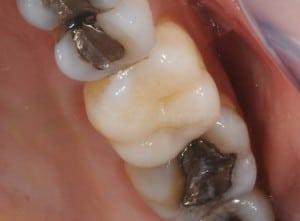 Dente com restauração em resina ao centro, cercado por restaurações em amálgama. Repare a diferença