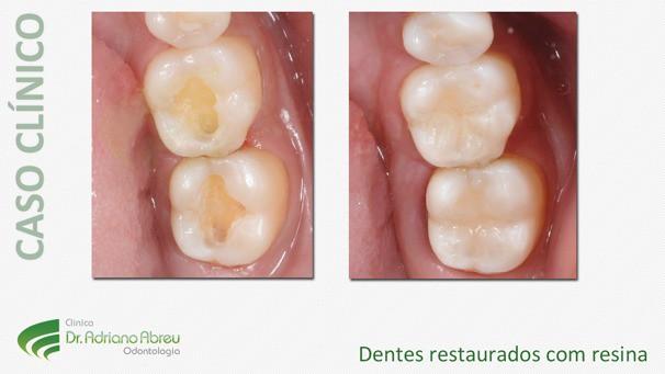Dentes restaurados com resina com textura e cor de dentes naturais