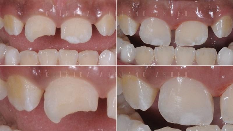 Tratamento de Dentes Quebrados com Resina em Crianças