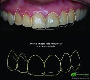 Imagem do Planejamento Digital Estético mostrando o comparativo entre o inicio do caso e o futuro sorriso