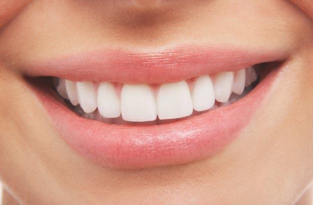 O clareamento dental exige cuidados para sua manutenção.