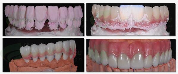 Prótese Dento Gengival em sua confecção (fase laboratorial)