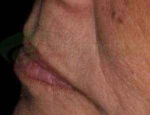 Região acima do lábio pode denunciar a presença da prótese