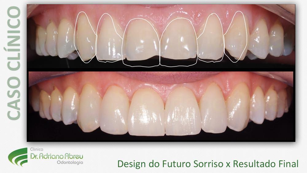 10-design-do-futuro-sorriso-lente-de-contato-dental - Dentista em Fortaleza    Odontologia Estética em Fortaleza   Clinica Adriano Abreu eb2a6102da