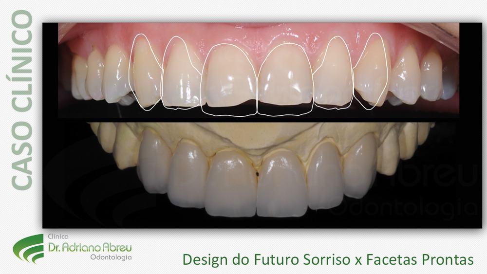 6-design-do-futuro-sorriso-x-facetas-prontas-lente-de-contato-dental -  Dentista em Fortaleza   Odontologia Estética em Fortaleza   Clinica Adriano  Abreu bd59656fc8