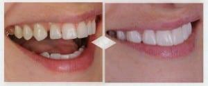 Pessoas com dentes separados, muito curtos quebrados ou amarelados podem usar o o mockup para ver o futuro resultado em sua própria boca
