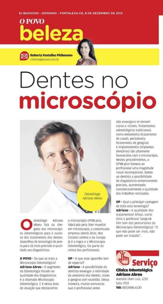 Dentes no microscópio, matéria no jornal O Povo