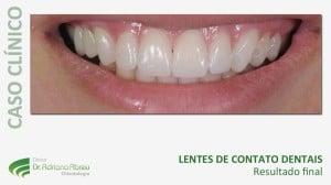 galaria-sorriso-1-evolucao-do-caso-11