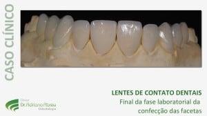 Final da fase laboratorial da confecção das lentes de contato dentais