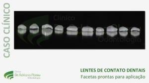 Lentes de contato dentais prontas para aplicação
