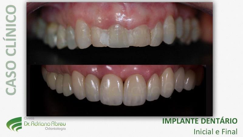 galeria-de-sorrisos-implantes-dentarios-10