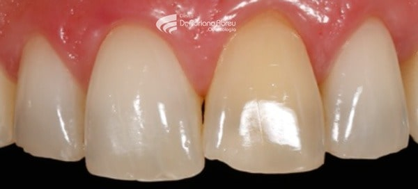 inicial-faceta-para-dente-quebrado