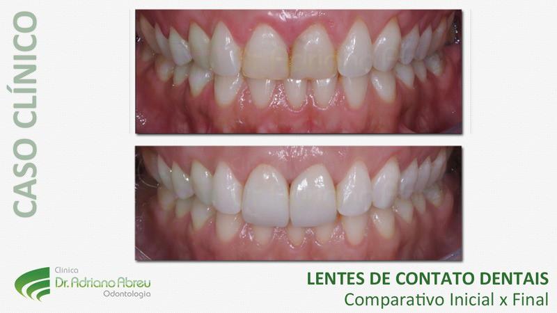 lentes-de-contato-dentais-inicial-final-2