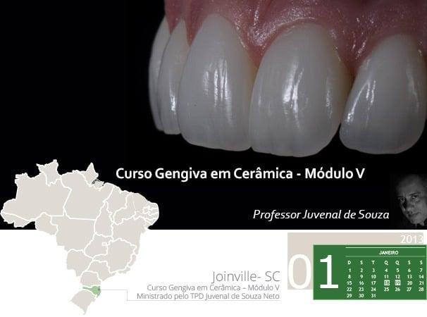 Curso Gengiva em Cerâmica – Módulo V com Professor Juvenal de Souza