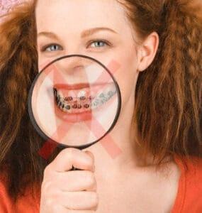 A ortodontia lingual é ideal para quem não quer exibir o famoso sorriso metálico