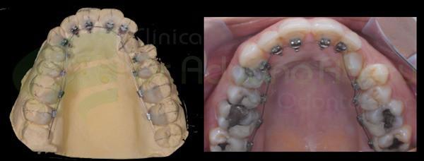 Modelo em gesso e aparelho lingual já na boca do paciente