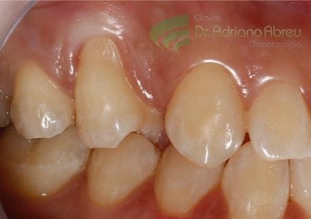 as-lesoes-de-perda-de-gengiva-ocorrem-mais-intensamente-nos-dentes-caninos-e-molares