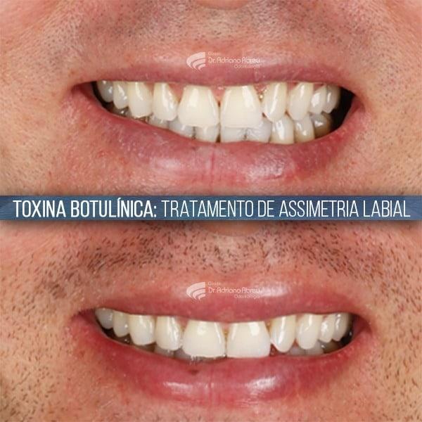 Sorriso assimétrico: Estudo de caso de tratamento de assimetria labial com toxina botulínica na odontologia.