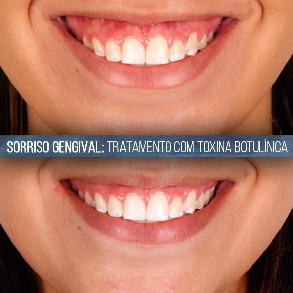 toxina botul u00ednica na odontologia