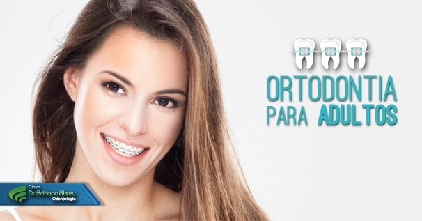 ortodontia-para-adultos