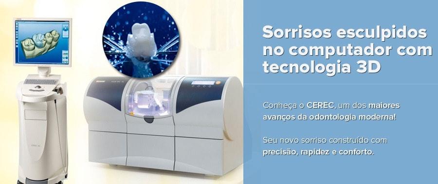 CEREC-odontologia-fortaleza