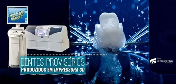 dentes-provisorios-produzidos-em-impressora-3d