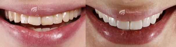 Além de dentes bonitos, um bom trabalho de odontologia estética, precisa de resultado natural