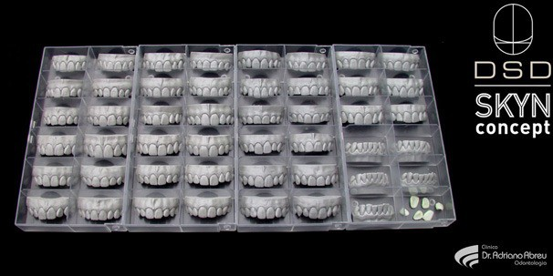 Catálogo de belos sorrisos, formados por dentes naturais, feito nos estudos de Jan Hajtó