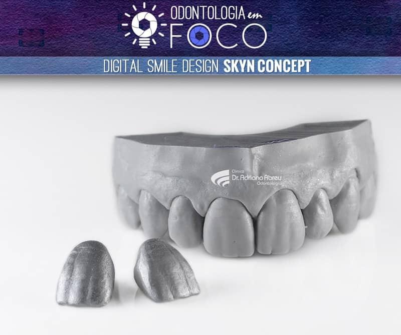 Detalhe de um modelo de Jan Hatjó, utilizado no DSD SKYN Concept