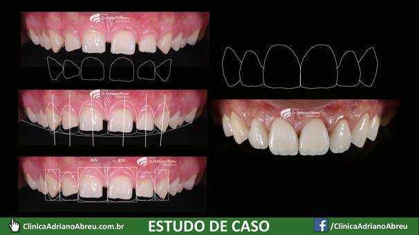 O DSD - Digital Smile Design, em bom português Planejamento Digital do Sorriso