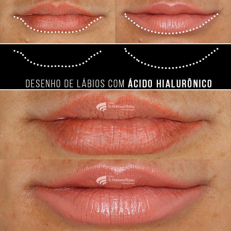 Preenchimento Facial com ácido hialurônico na odontologia