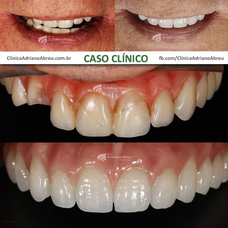 protese-dentaria-quando-trocar-01