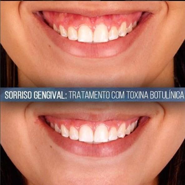 Sorriso gengival: é regra na odontologia estética que a pessoa mostre entre 2 ou 3 milímetros de gengiva