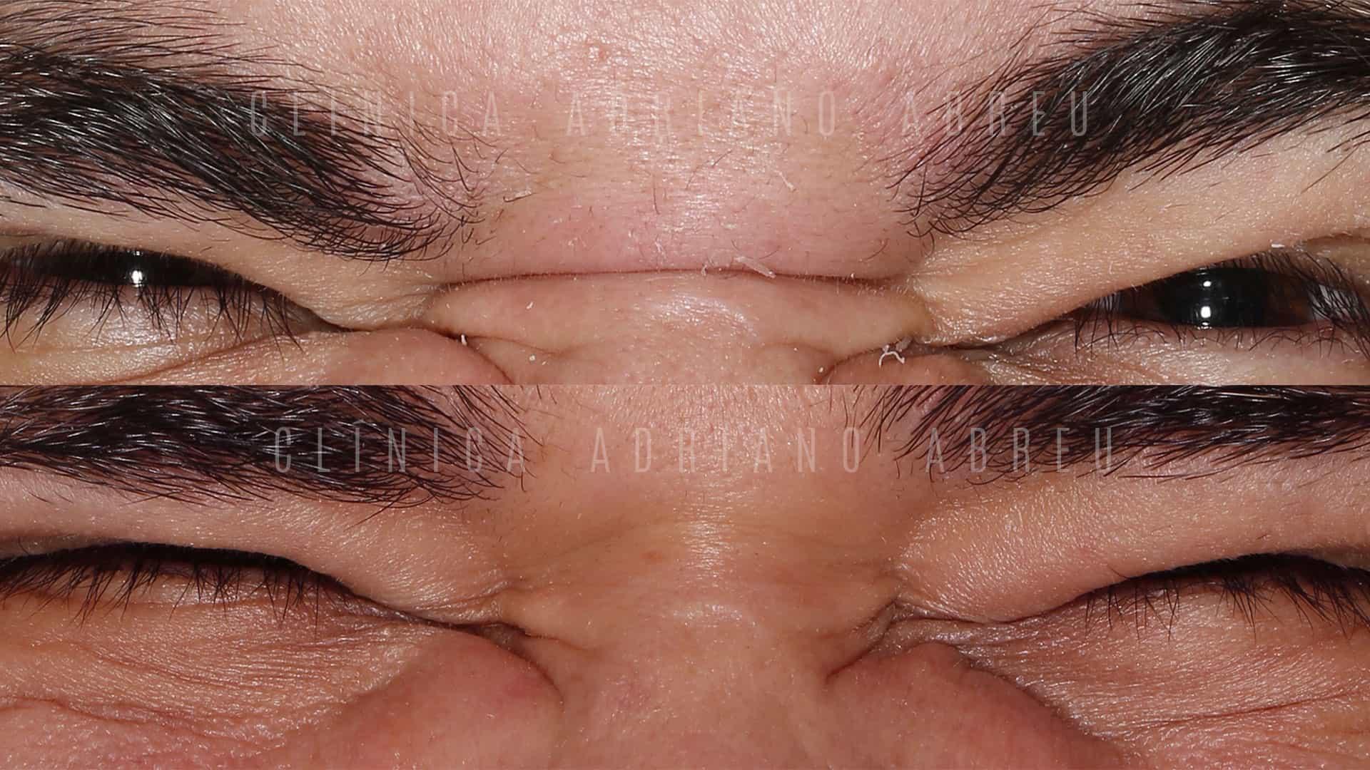 Toxina botulínica utilizada em rugas entre as sobrancelhas