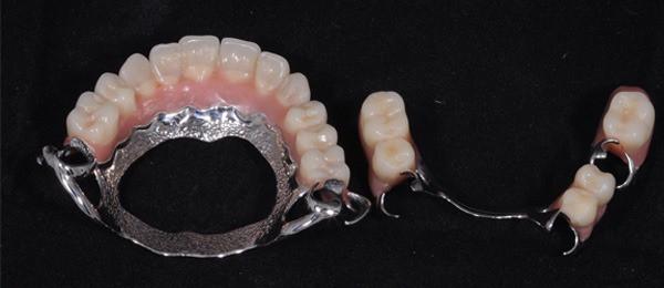 a-protese-parcial-removivel-e-sustentada-pelos-dentes-naturais
