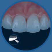 Laser Litetouch Cirúrgico na Odontologia Estética