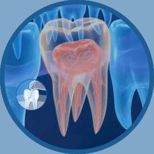 Laser Litetouch Cirurgico para endodontia
