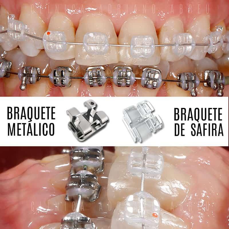Braquete Metálico tradicional ou Braquete Estético em Safira?