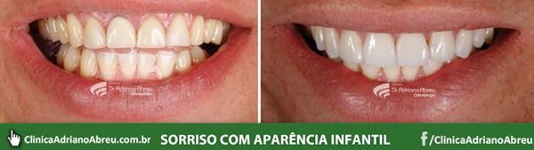dentes-com-aparencia-infantil