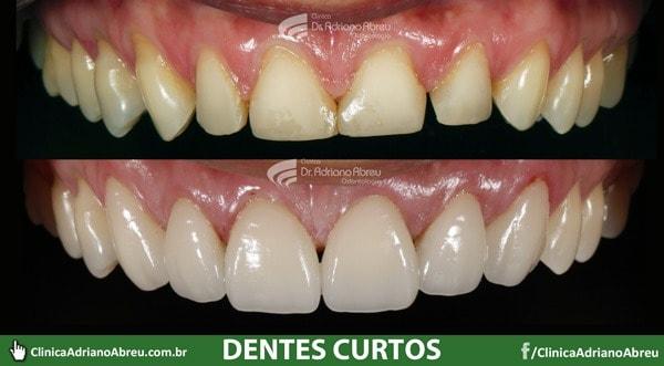 Dentes curtos solucionados com o tratamento