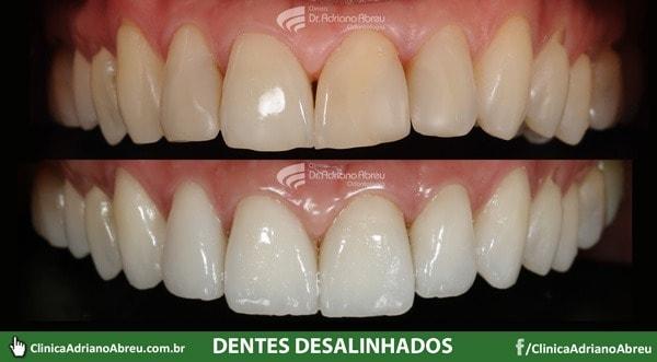 dentes-desalinhados