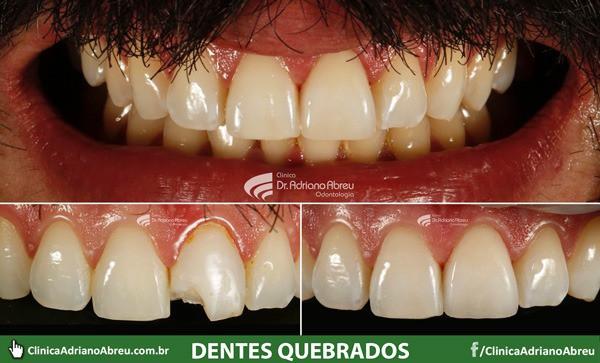dentes-quebrados