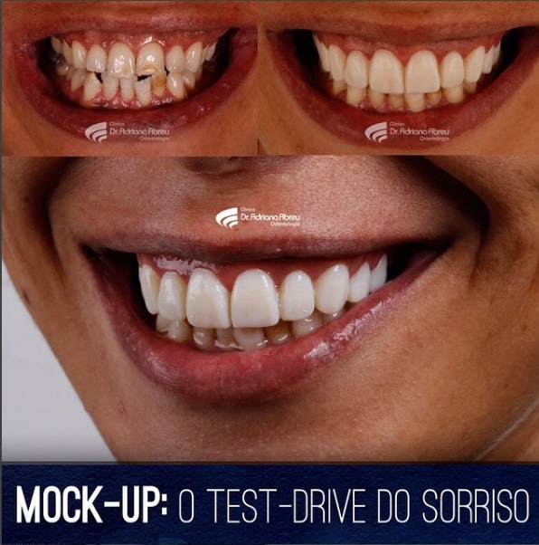 mock-up-o-test-drive-do-sorriso